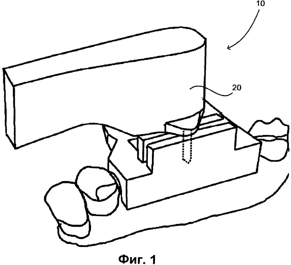 Стоматологический инструмент и направляющие устройства