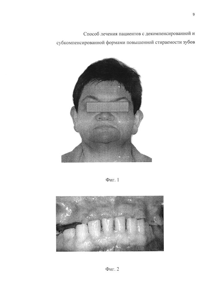 Способ лечения пациентов с декомпенсированной и субкомпенсированной формами повышенной стираемости зубов (варианты)