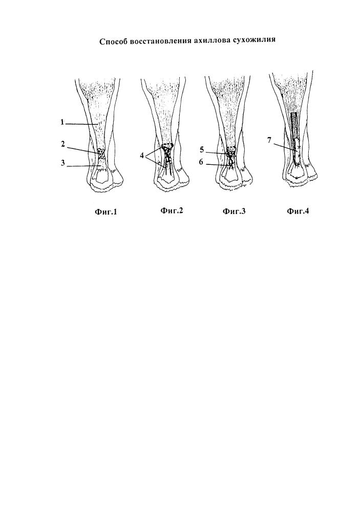 Способ восстановления ахиллова сухожилия