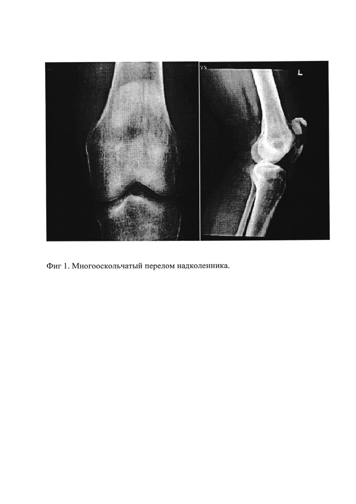 Способ остеосинтеза при многофрагментарных оскольчатых переломах надколенника