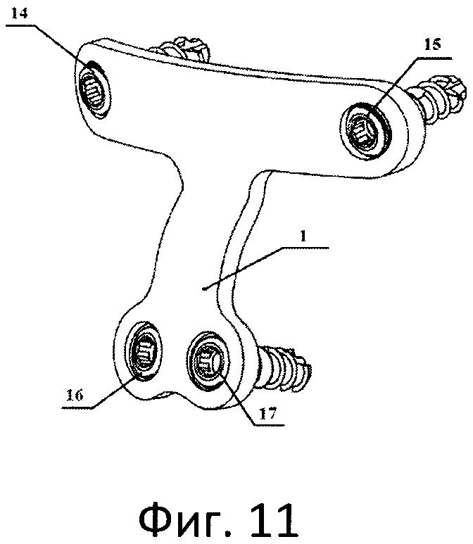 Устройство для передней стабилизации с1-с2 позвонков