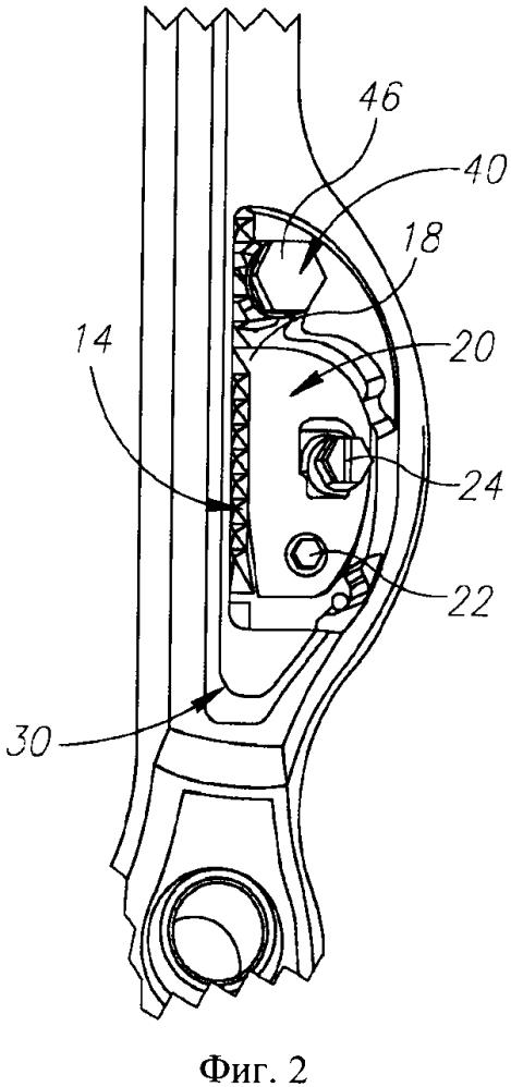 Спинальное устройство с храповым механизмом (варианты)