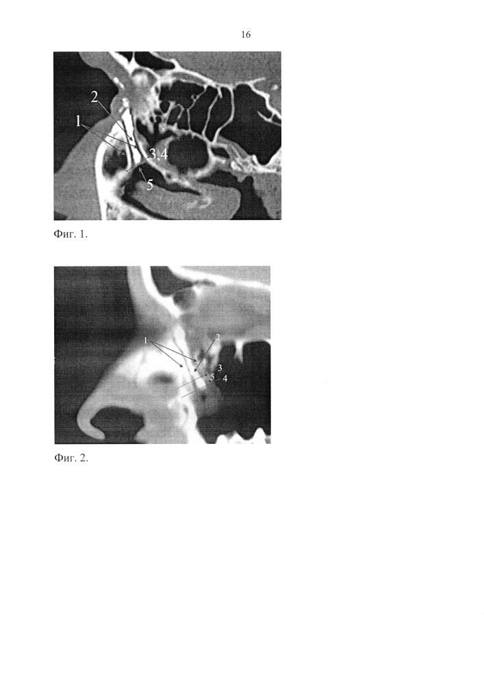 Способ определения анатомического строения устья носослезного протока