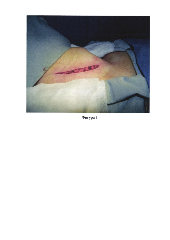 Способ хирургического лечения больных раком щитовидной железы с метастазами в лимфатических узлах шеи