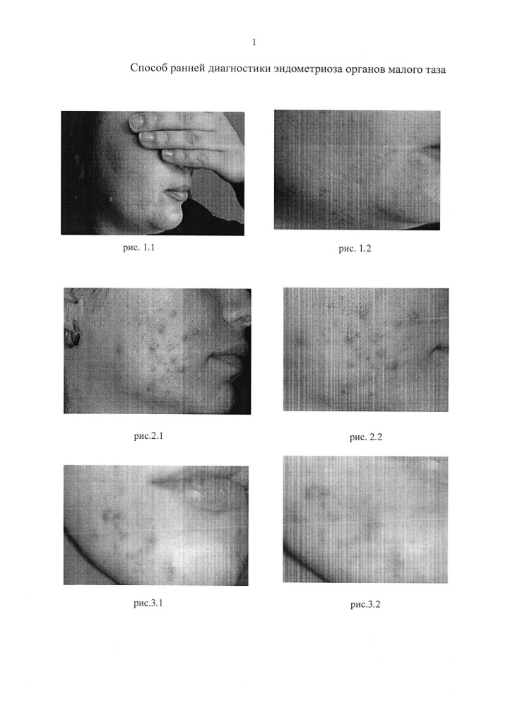 Способ ранней диагностики эндометриоза органов малого таза