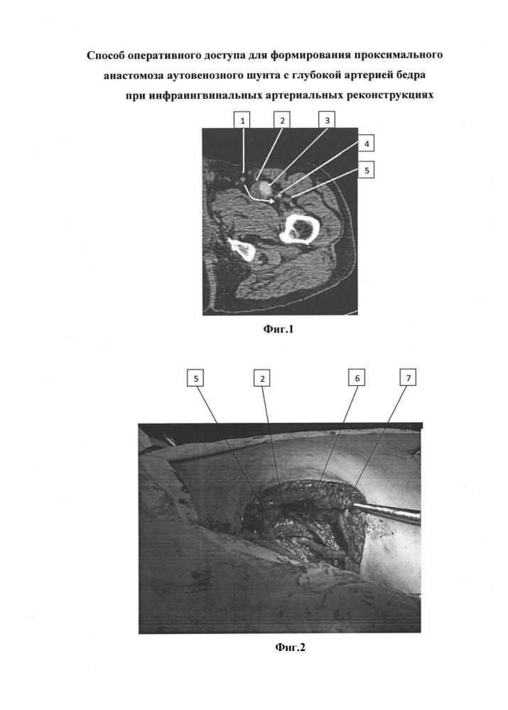 Способ оперативного доступа для формирования проксимального анастомоза аутовенозного шунта с глубокой артерией бедра при инфраингвинальных артериальных реконструкциях