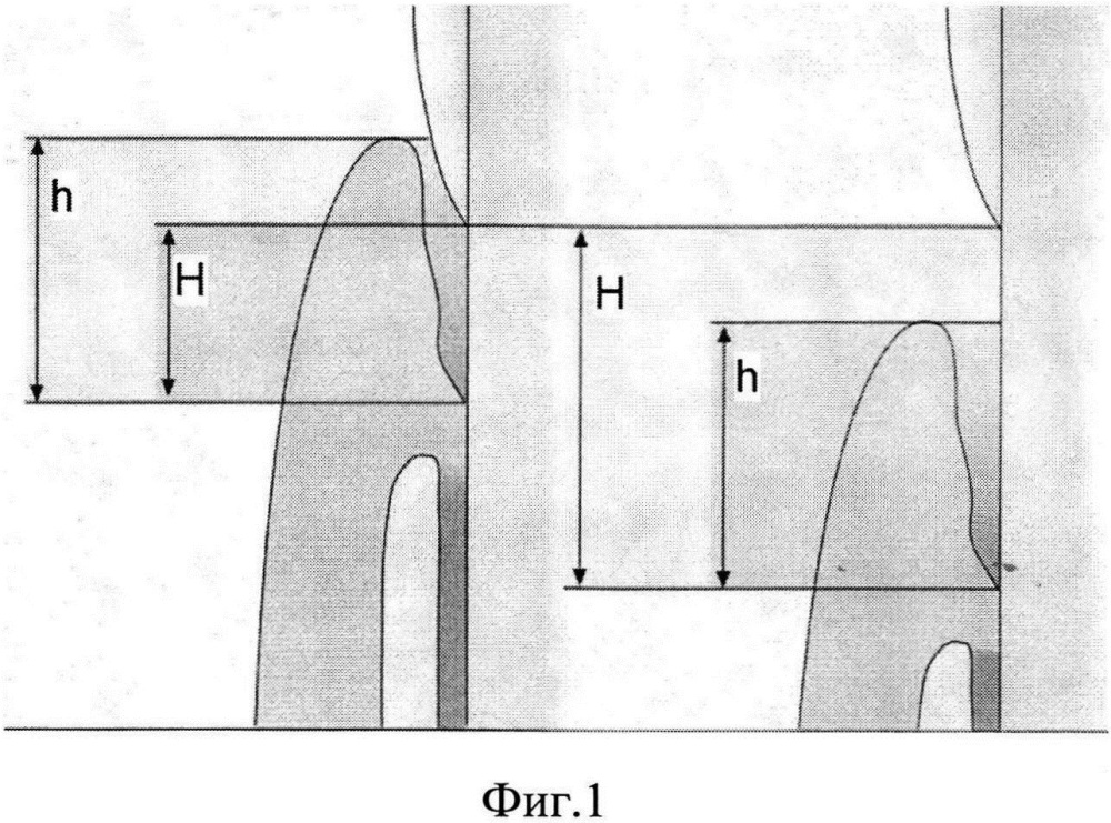 Способ оценки деструкции тканей пародонта