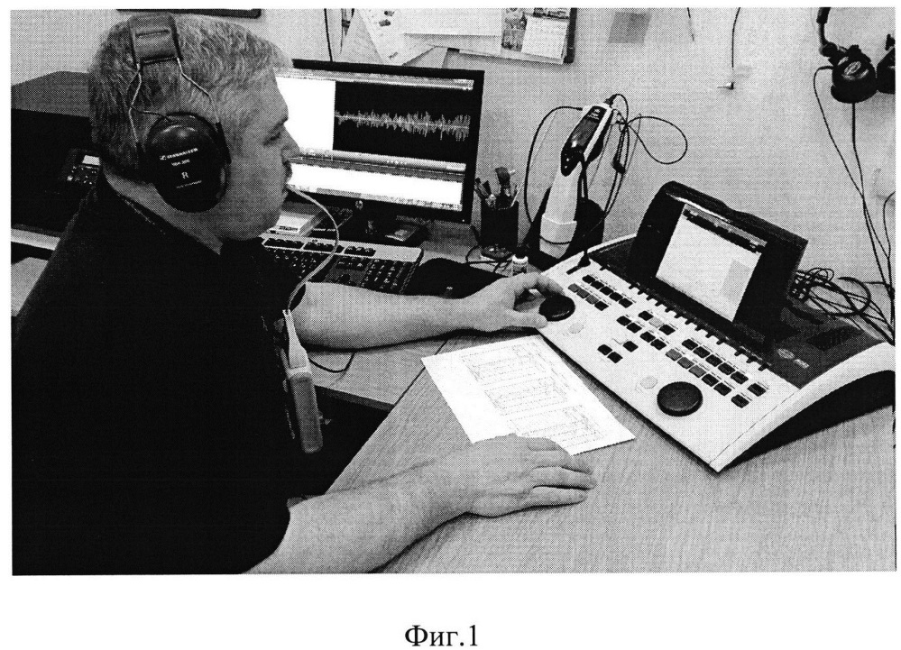 Способ лечения сенсорных нарушений слуха, сопровождающихся ухудшением восприятия речи