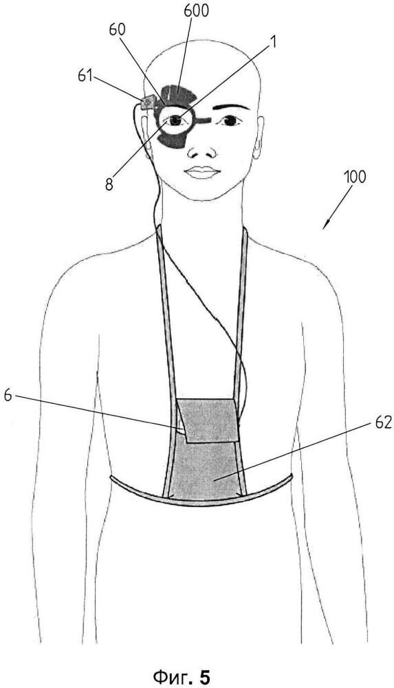 Система для измерения и/или контроля внутриглазного давления с инерциальным датчиком