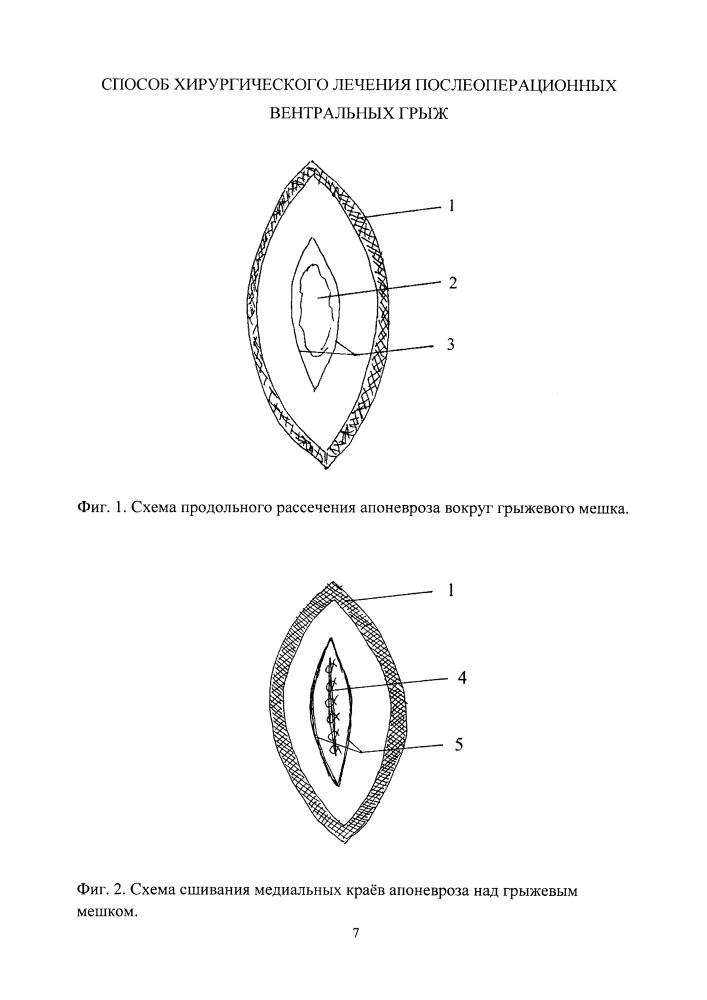 Способ хирургического лечения послеоперационных вентральных грыж