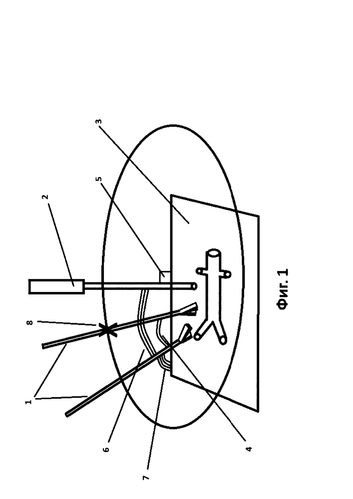 Способ определения оптимальной расстановки троакаров при лапароскопических операциях на брюшном отделе аорты и ее ветвях