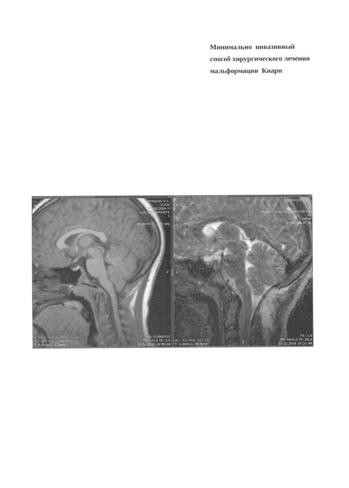 Минимально инвазивный способ хирургического лечения мальформации киари