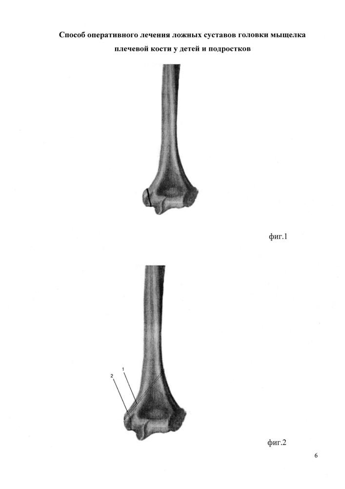 Способ оперативного лечения ложных суставов головки мыщелка плечевой кости у детей и подростков