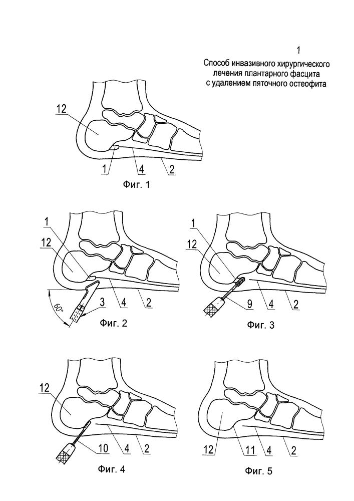 Способ инвазивного хирургического лечения плантарного фасцита с удалением пяточного остеофита