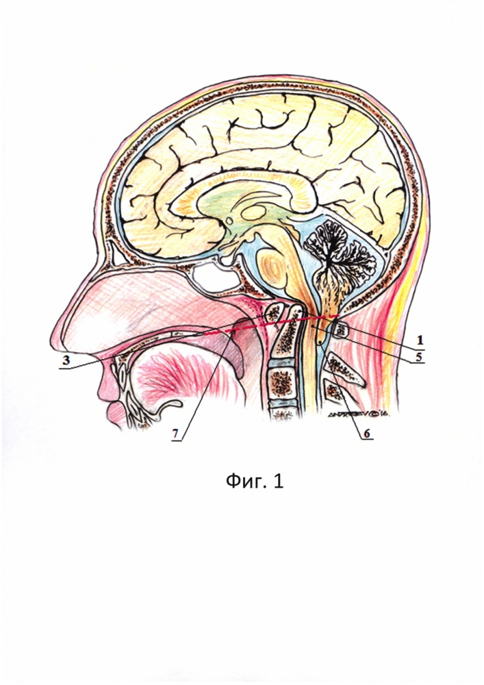 Способ лечения инвагинированного зубовидного отростка с2 позвонка, сочетающегося с мальформацией киари i типа