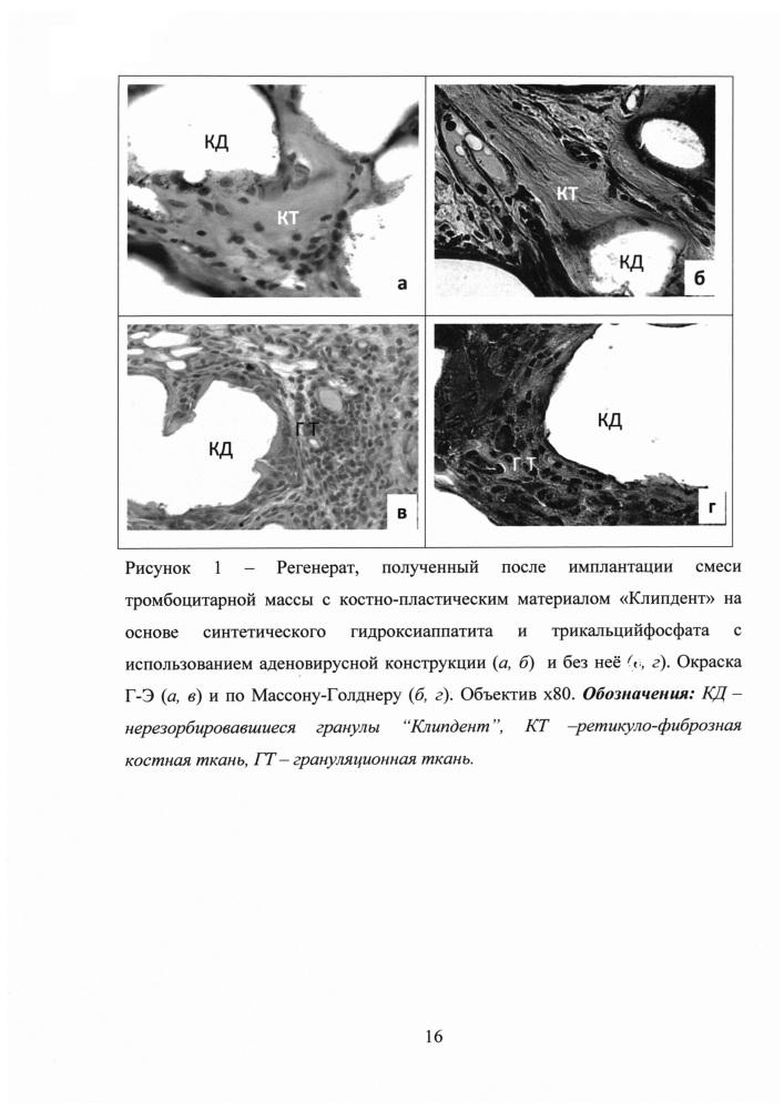 Композиция для восстановления дефектов костной ткани на основе аденовирусных конструкций, несущих кднк вмр-2, фибринового геля и синтетического β-трикальцийфосфата и способ ее получения