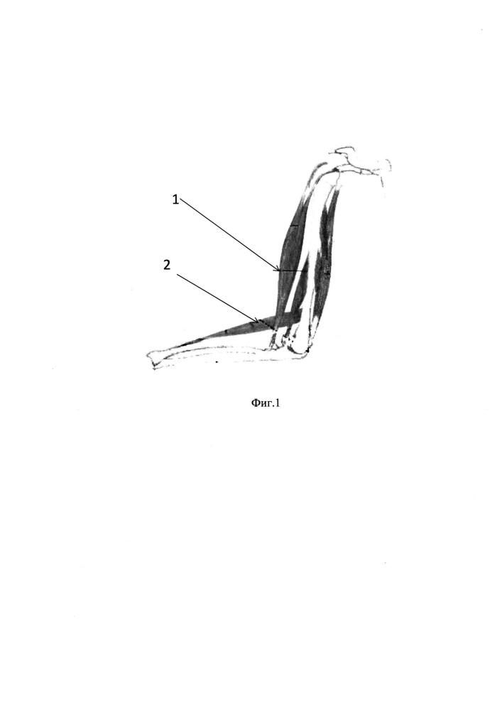 Способ восстановления разгибания ii-v пальцев кисти при рубцовом сморщивании межкостных мышц