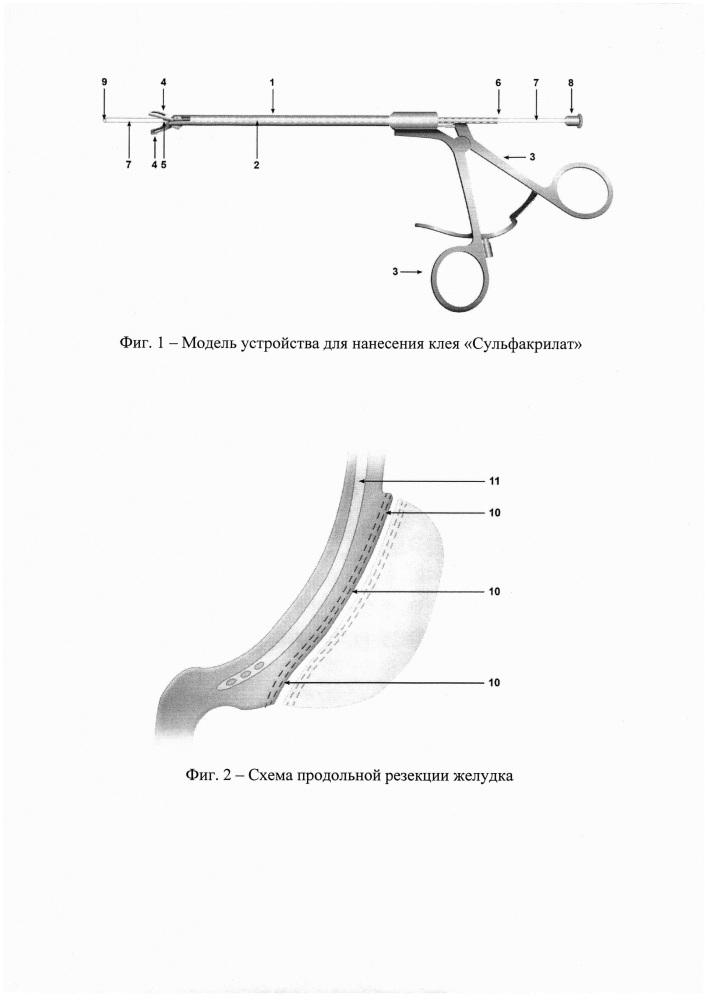 Устройство для доставки клея сульфакрилат на линию степлерного шва и способ его использования
