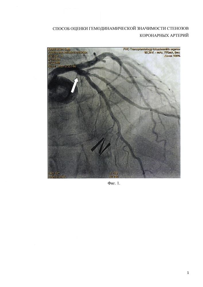 Способ оценки гемодинамической значимости стенозов коронарных артерий (ка)
