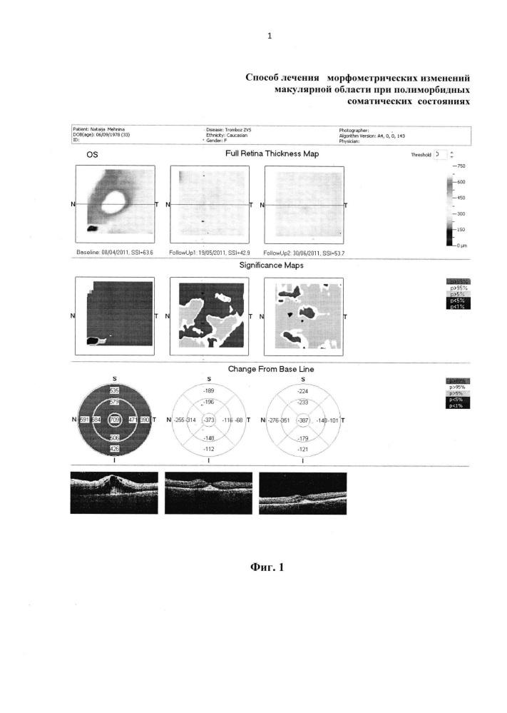 Способ лечения морфометрических изменений макулярной области при полиморбидных соматических состояниях