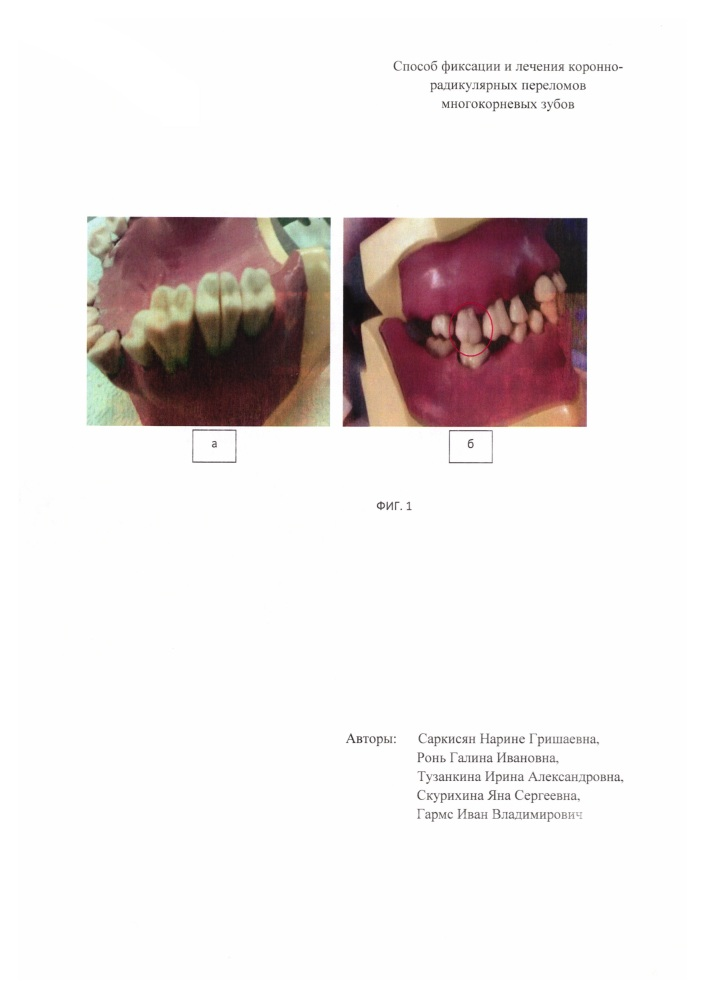 Способ фиксации и лечения коронно-радикулярных переломов многокорневых зубов