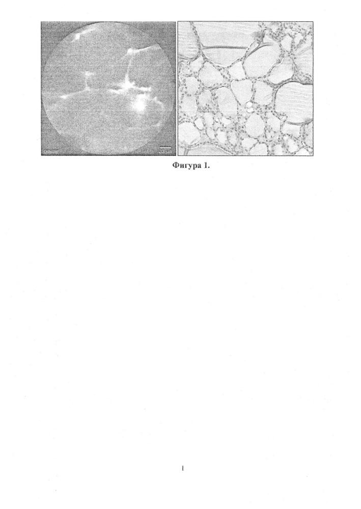 Способ интраоперационной дифференциальной диагностики объемных образований щитовидной железы