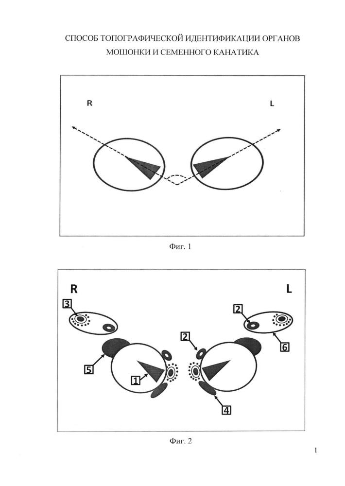 Способ топографической идентификации органов мошонки и семенного канатика