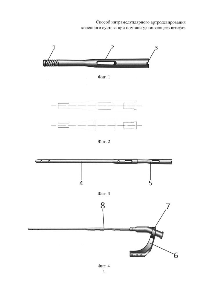 Способ интрамедуллярного артродезирования коленного сустава при помощи удлиняющего штифта