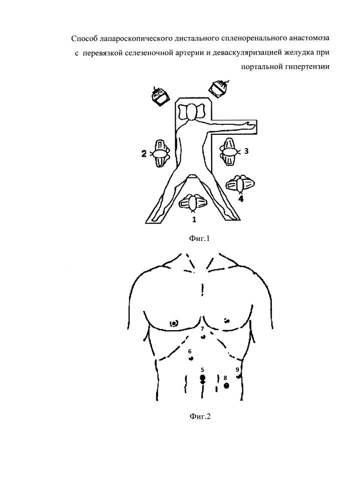 Способ лапароскопического дистального спленоренального анастомоза с перевязкой селезеночной артерии и деваскуляризацией желудка при портальной гипертензии