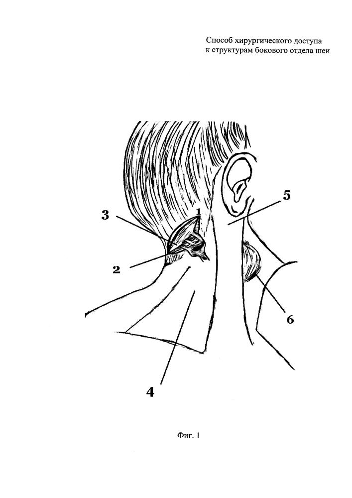Способ хирургического доступа к структурам бокового отдела шеи