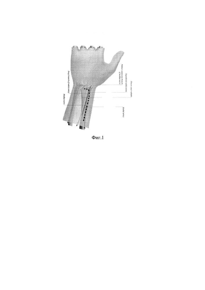 Способ хирургического доступа к дистальному отделу лучевой кости при переломах