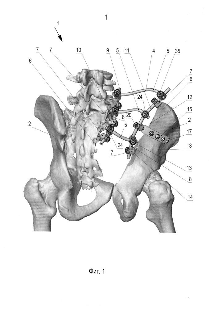 Способ реконструкции костей таза