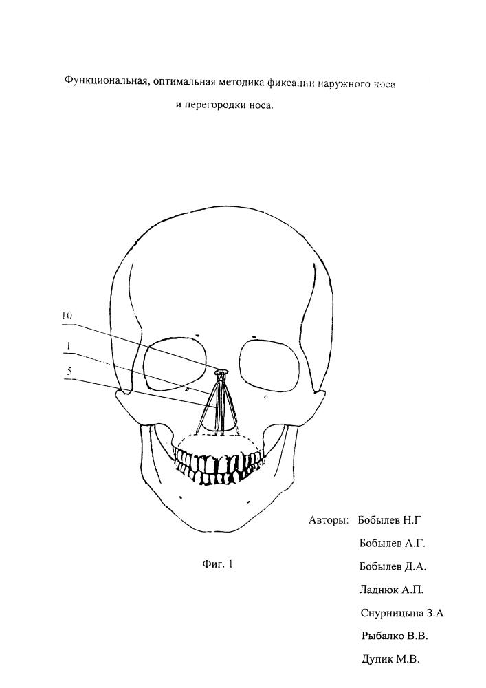Способ фиксации наружного носа и перегородки полости носа.