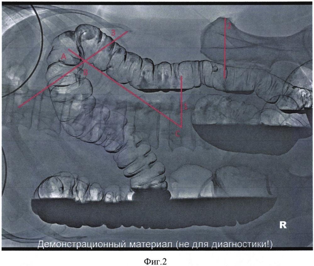 Способ диагностики и оценки смещения селезеночного изгиба и нисходящей ободочной кишки