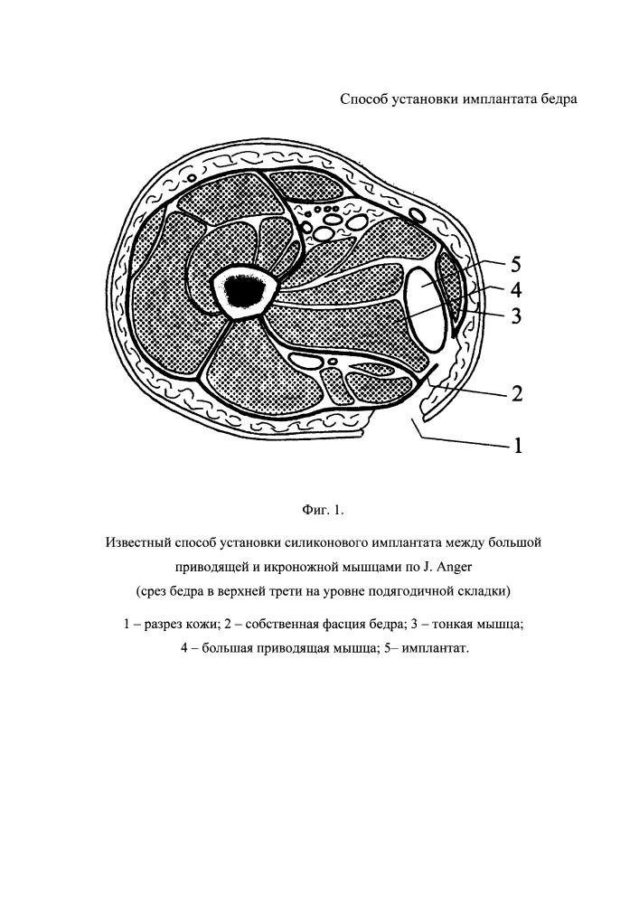 Способ установки имплантата бедра