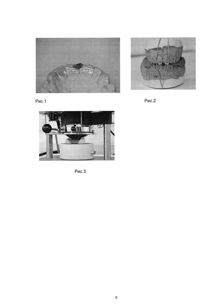 Способ изготовления стоматологических многослойных кап для спортсменов с использованием электронейромиостимуляции