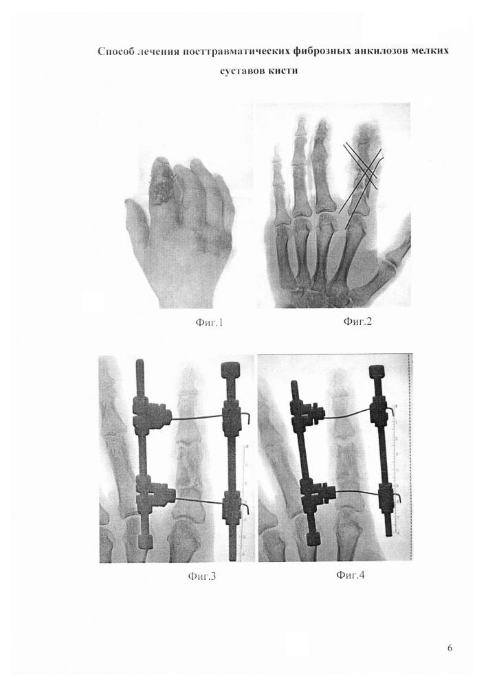 оздоровление позвоночника и суставов доктор бубновский