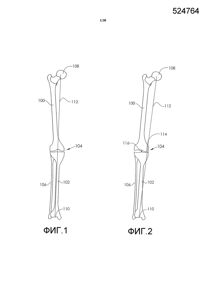 Корректируемые устройства для лечения артрита колена