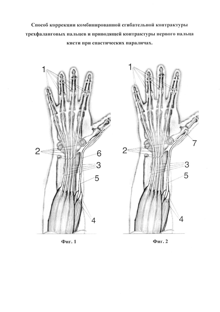 Способ коррекции комбинированной сгибательной контрактуры трехфаланговых пальцев и приводящей контрактуры первого пальца кисти при спастических параличах