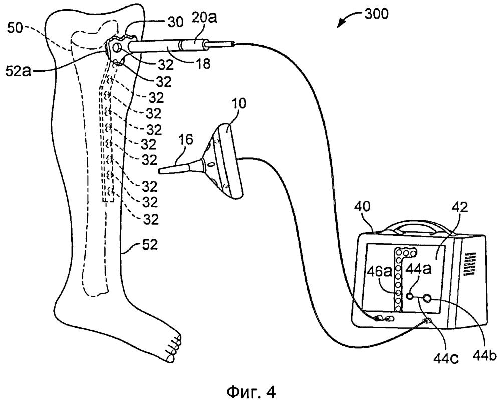 Нацеливание на опознавательные точки ортопедических устройств