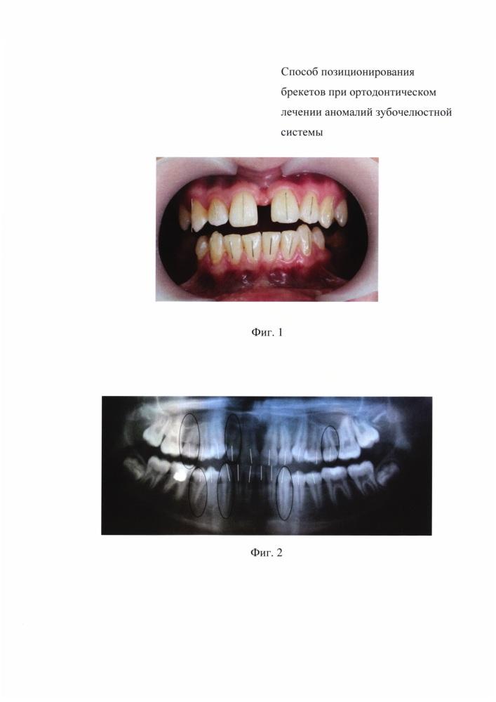 Способ позиционирования брекетов при ортодонтическом лечении аномалий зубочелюстной системы