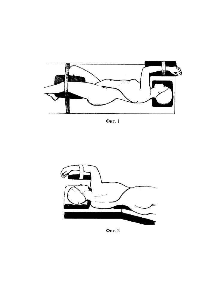 Задне-задненаружный внебрюшинно-внеплевральный доступ к телам грудопоясничного отдела позвоночника