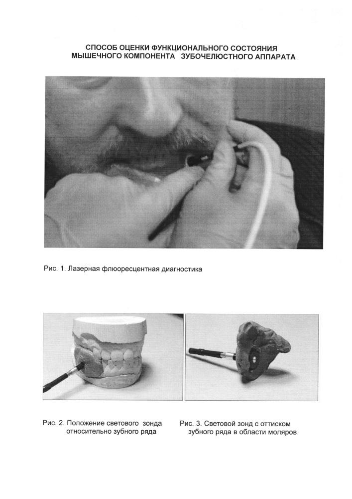 Способ оценки функционального состояния мышечного компонента зубочелюстного аппарата