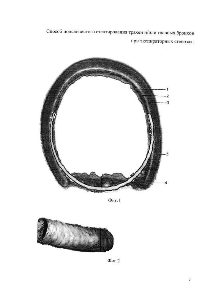 Способ подслизистого стентирования трахеи и/или главных бронхов при экспираторных стенозах