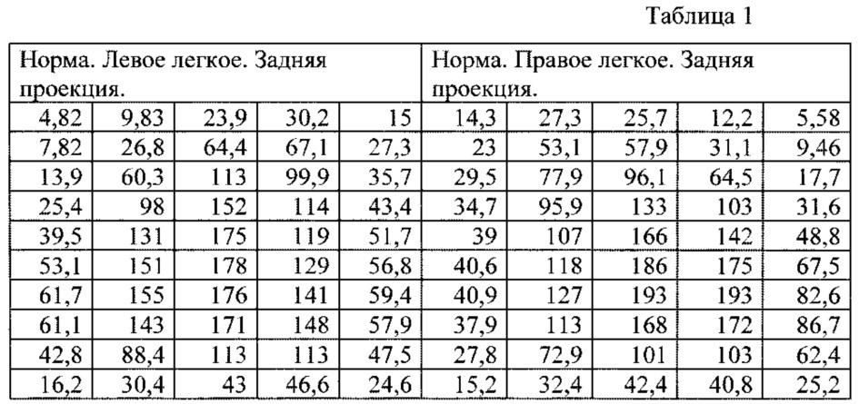 Способ количественного определения накопления радиофармпрепарата при радионуклидном исследовании перфузии легких