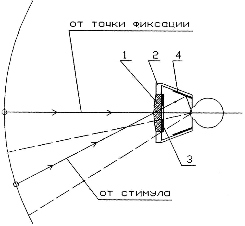 Коррекционная линза для исследования периферийных областей поля зрения