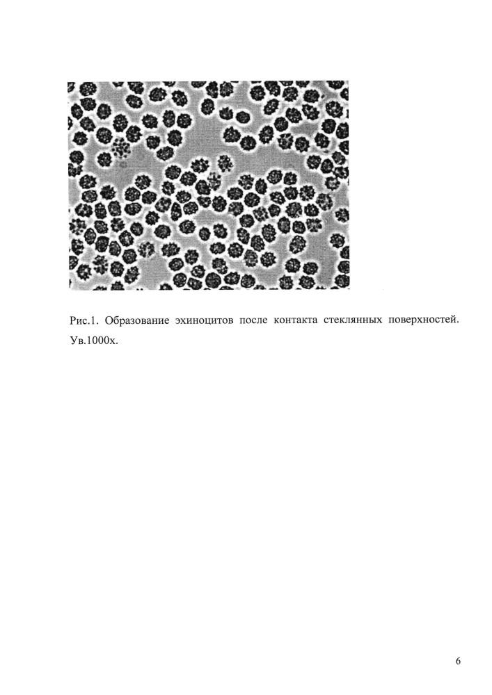 Способ прижизненной оценки действия реагентов на образование стоматоцитов