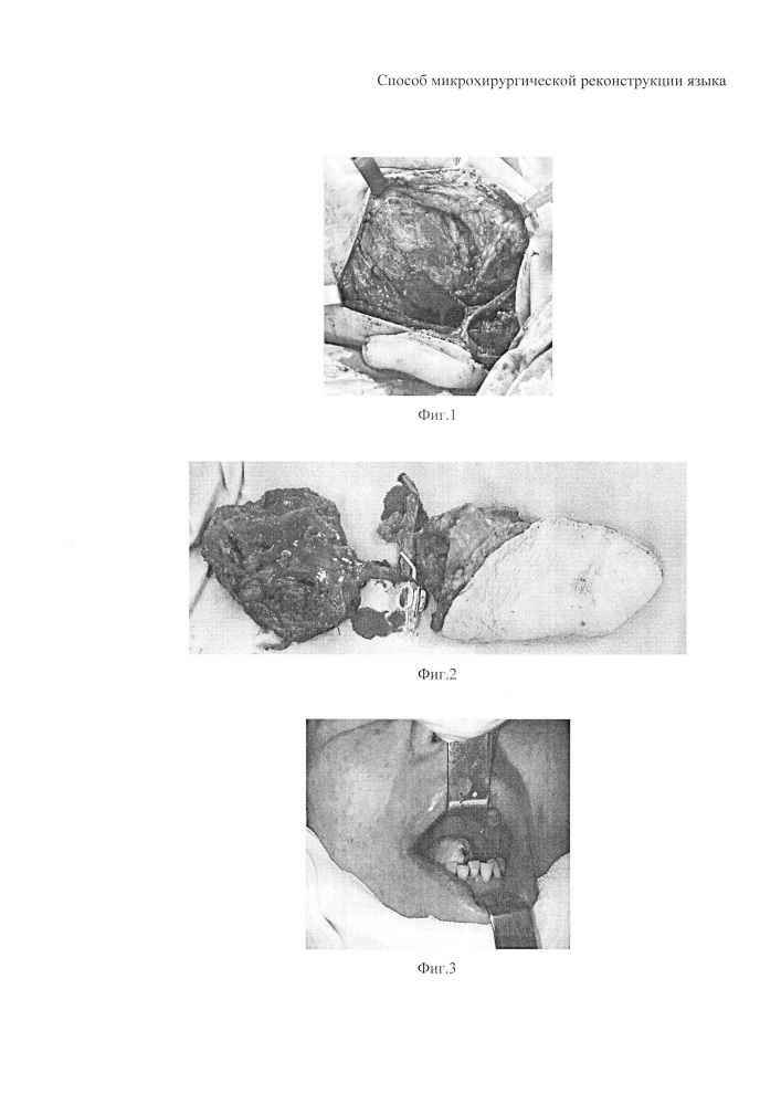 Способ микрохирургической реконструкции языка