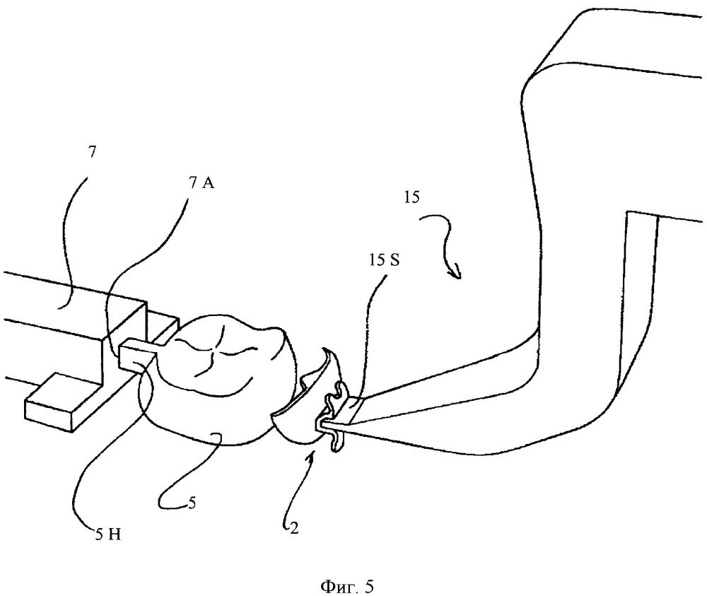 Способ изготовления индивидуального для пациента заменителя брекета для челюстного ортопедического лечения