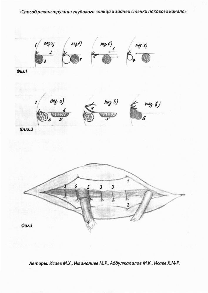 Способ реконструкции глубокого кольца и задней стенки пахового канала